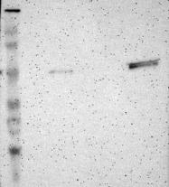 NBP1-84920 - TRAF1 / EBI6