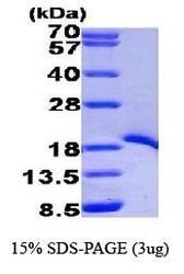 NBP1-44457 - TRAF1 / EBI6