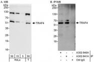 NBP1-47305 - TRAF4 / RNF83