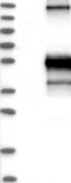 NBP1-85772 - CD262 / TRAILR2