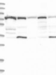 NBP1-87125 - TRAIP / RNF206