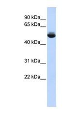 NBP1-60111 - TRAM1L1