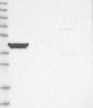 NBP1-83052 - TRAM2