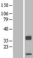 NBL1-17254 - TRAM2 Lysate