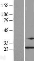 NBL1-17259 - TRAPPC4 Lysate