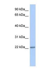 NBP1-56296 - TRAPPC5