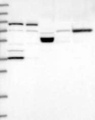 NBP1-82756 - Trehalase (TREH)