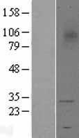 NBL1-17264 - TREM1 Lysate