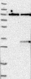 NBP1-80662 - TREM2