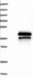 NBP1-84234 - TREML1