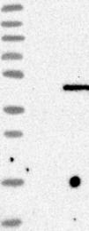 NBP1-89202 - TREX1