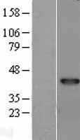 NBL1-17272 - TRIB2 Lysate