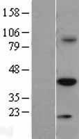 NBL1-17273 - TRIB3 Lysate