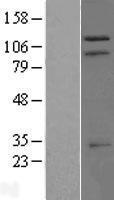 NBL1-17293 - TRIM37 Lysate