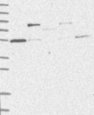 NBP1-87126 - TRIM38 / RNF15