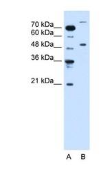 NBP1-55074 - TRIM42