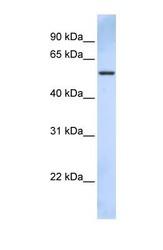 NBP1-55071 - TRIM43