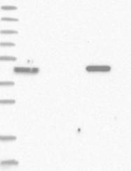 NBP1-82088 - TRIM46 / TRIFIC