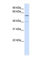 NBP1-55061 - TRIM49  / RNF18