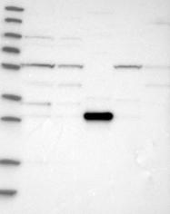 NBP1-87119 - TRIM5 / RNF88