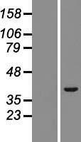 NBL1-17304 - TRIM52 Lysate