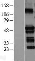NBL1-17308 - TRIM58 Lysate