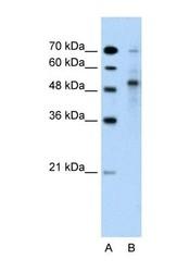 NBP1-59777 - TRIM59 / TSBF1 / RNF104