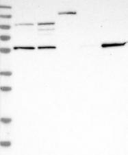 NBP1-86017 - TRIM65