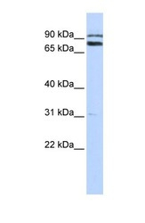 NBP1-55028 - TRIM67
