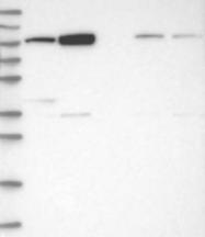 NBP1-81306 - TRIM71