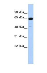 NBP1-55029 - TRIM72 / MG53