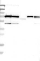NBP1-90589 - TRIOBP / TARA