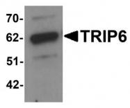 NBP1-76305 - TRIP6 / OIP1