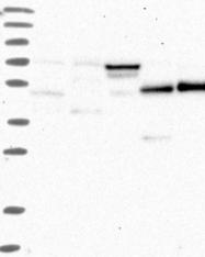 NBP1-82197 - TRMU / TRMT1