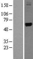 NBL1-17326 - TRMT1 Lysate
