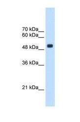 NBP1-55171 - TRMT2B