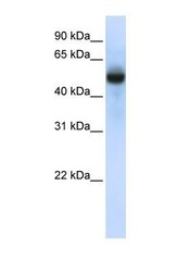 NBP1-55232 - TRMT2B