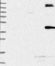 NBP1-85370 - TRMT2B