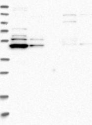 NBP1-83640 - TRMT61B