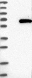 NBP1-83641 - TRMT61B