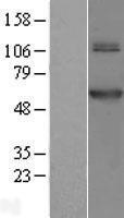 NBL1-10756 - TRMT61B Lysate