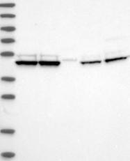 NBP1-86589 - TRNT1