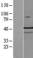NBL1-17327 - TRNT1 Lysate