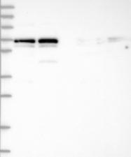 NBP1-92532 - Tastin / TROAP
