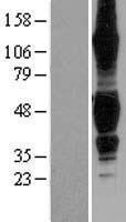 NBL1-17153 - TROY Lysate