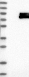 NBP1-86892 - TYRP2 / DCT