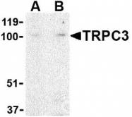 NBP1-76722 - TRPC3 / TRP3