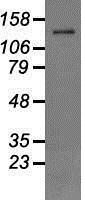 NBP1-48036 - Melastatin-4