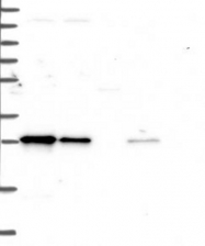 NBP1-81230 - TRPT1