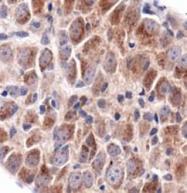 NBP1-71774 - TRPV1 / Vanilloid receptor 1